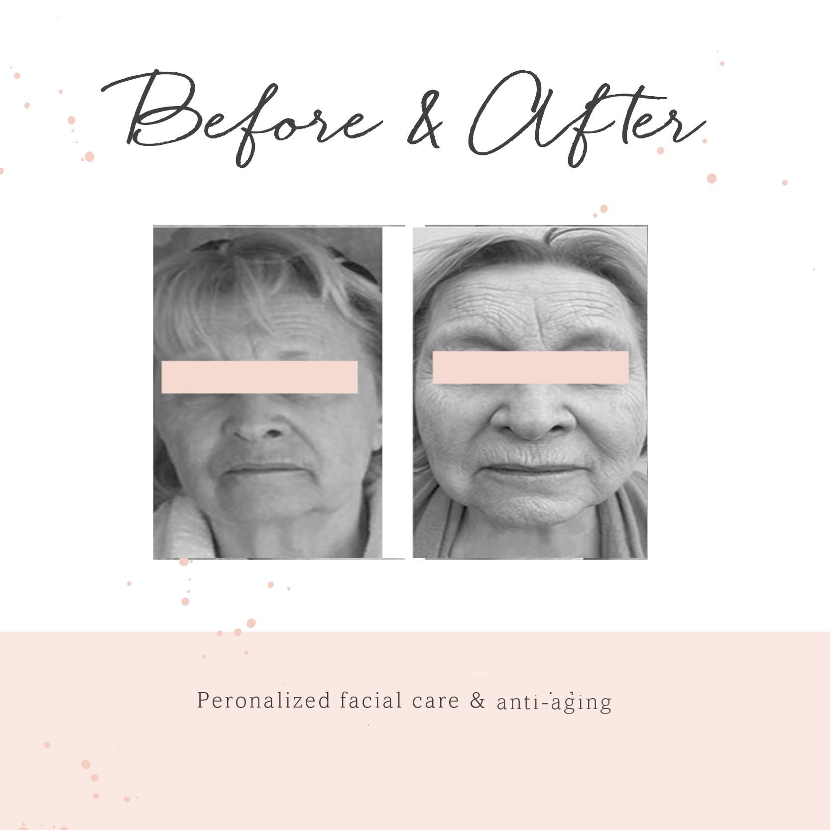 Anti_aging2
