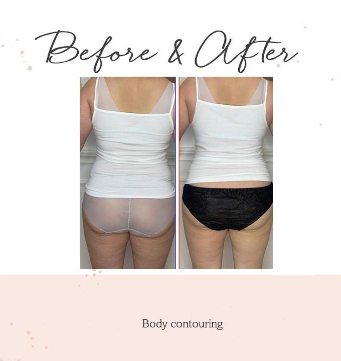 body contouring1