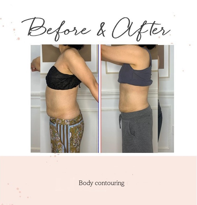 body contouring2